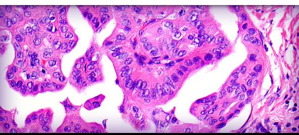 Iowa Pathology Associates, P C